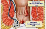 Геморрой —  заболевание, связанное с тромбозом, воспалением, патологическим расширением и извитостью геморроидальных вен, все о гомеопатии