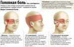 Почему возникает пульсирующая головная боль — как ее лечить, все о гомеопатии