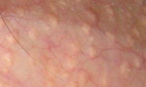 Шишка на половой губе (малой, большой) — первые признаки заболевания, все о гомеопатии