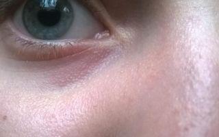 Белые точки под глазами — все о гомеопатии