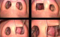 Шишка в носу — удаление безоперационными методами, все о гомеопатии