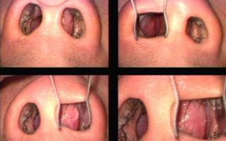 Шишка в носу — все о гомеопатии