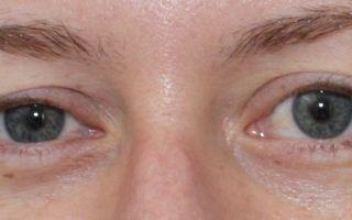 Один глаз больше другого (взрослые) — почему, что делать, все о гомеопатии