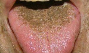 Черный налет на языке — все о гомеопатии