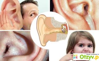 Закладывает уши (при насморке) — причины и первая помощь, все о гомеопатии
