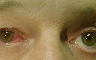 Резь и слезоточивость глаз — сигналы о проблемах органов зрения, все о гомеопатии