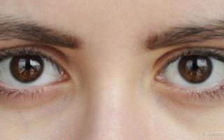 Коричневые круги под глазами — как избавиться от проблемы, все о гомеопатии