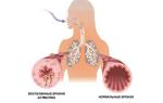 Бронхиальная астма — все о гомеопатии