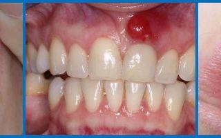 Почернела десна вокруг зуба — все о гомеопатии
