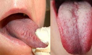 Кислый привкус во рту и белый налет на языке — все о гомеопатии