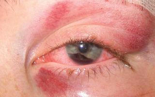 Глаза чешутся и краснеют — причины и опасности, все о гомеопатии
