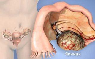 Киста яичника — образование в виде пузыря с жидкостью или полужидким содержимым, все о гомеопатии