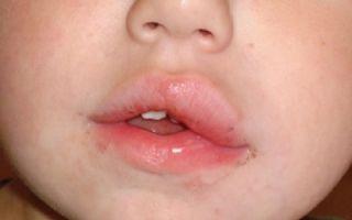 Дергается верхняя или нижняя губа — что можно предпринять, все о гомеопатии