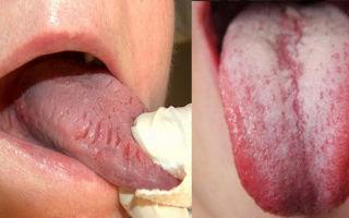 Воспаление языка (Glossitis) — воздействие патогенных микроорганизмов, все о гомеопатии
