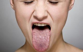 Кровь из носа (по утрам) — самые частые причины кровотечений, все о гомеопатии