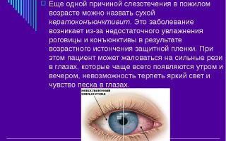 Слезятся глаза — причины офтальмологического нарушения, все о гомеопатии