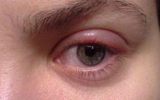 Отек верхнего века одного глаза — все о гомеопатии