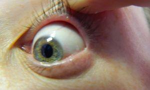 Прозрачные пузырьки на веке глаза — все о гомеопатии