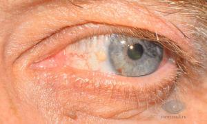Желтые пятна на веках глаз — разберем все причины, все о гомеопатии