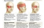 Болит голова и красные глаза — причины и первая помощь, все о гомеопатии