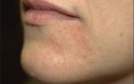 Сыпь вокруг рта (взрослые) — лечение внутренних проблем организма, все о гомеопатии