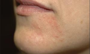 Сыпь вокруг рта (взрослые) — все о гомеопатии