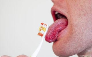Соленый привкус во рту — все о гомеопатии