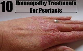 Псориаз —  хроническое неинфекционное заболевание, дерматоз, поражающий в основном кожу, все о гомеопатии