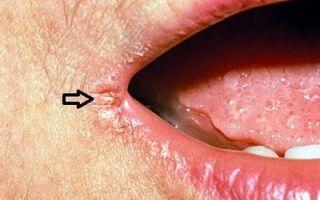 Заеды в уголках рта — способы лечения и меры профилактики, все о гомеопатии