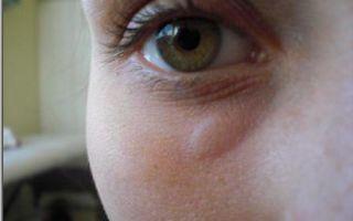 Отек под глазом (с одной стороны) — все о гомеопатии