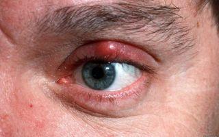 Болят глаза (при моргании) — причины и лечение, все о гомеопатии