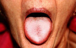 Белый налет на языке (взрослые) — все о гомеопатии