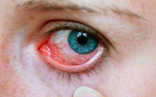 Щиплет глаза — как избавиться от неприятных ощущений, все о гомеопатии
