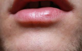 Красная точка на губе — причины и опасности, все о гомеопатии