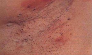 Шарик на половой губе — все о гомеопатии
