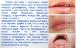 Жировики на губах — все о гомеопатии