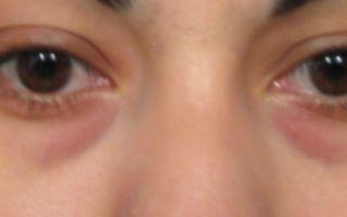 Красные круги под глазами (взрослые) — все о гомеопатии