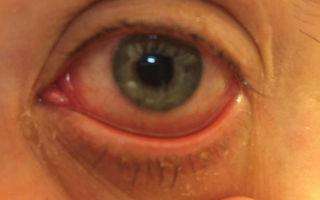 Опухоль под глазом — все о гомеопатии