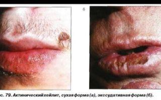 Воспаление красной каймы губ (Хейлит) — побледнения, мацерации с поперечными трещинами кожи, все о гомеопатии