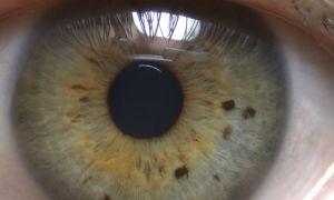 Пигментные пятна на радужке глаза — все о гомеопатии