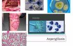 Аспергиллёз — все о гомеопатии