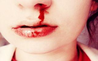 Болит голова и идет кровь из носа — какие причины, все о гомеопатии