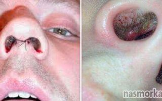 Сухость и корочки в носу (взрослые) — активная борьба с недугом, все о гомеопатии