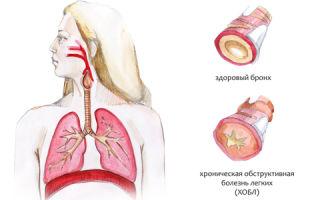 Бронхит (bronchitis) у детей и взрослых — причины заболевания дыхательной системы, все о гомеопатии