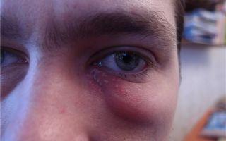 Опухло нижнее веко глаза — какое лечение применить, все о гомеопатии