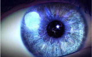 Вспышки света в глазах — почему в глаза возникают световые вспышки, все о гомеопатии