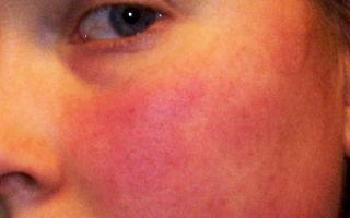 Гомеопатическое лечение розацеа — все о гомеопатии