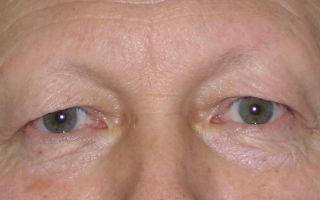 Нависание века над глазом — основные правила макияжа, все о гомеопатии