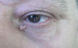 Шишка на веке глаза — распространенные причины появления, все о гомеопатии
