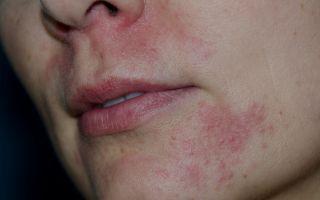 Раздражение вокруг рта (взрослые) — основные причины, все о гомеопатии